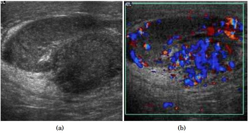Testicular Ultrasound